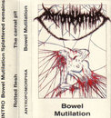 Bowel Mutilation